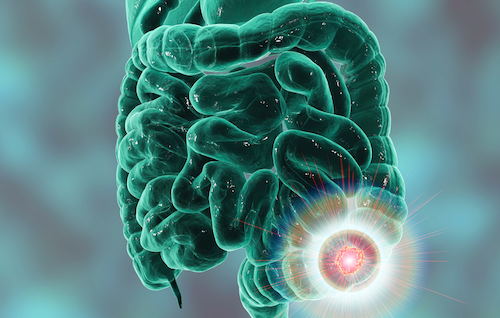 detección precoz cáncer de colon